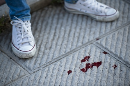 The sneakers and jeans of a person standing on a white rug that is spattered with blood.