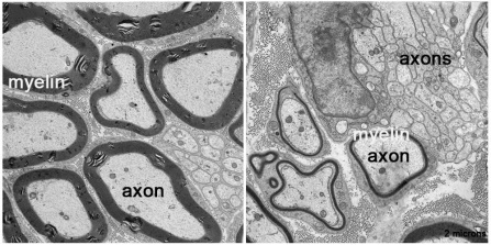 Pictures of axon and myelin.