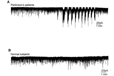 Chart showing results of Parkinson's research: Image A depicts the rhythmic bursting or oscillations of electrical currents measured in picoamperes in neurons from Parkinson's patients. Image B shows that there is no oscillation of electrical currents in neurons from normal subjects.