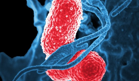 A digitally-colorized scanning electron micrograph depicts a blue-colored, human white blood cell interacting with two pink-colored, rod-shaped, multidrug-resistant Klebsiella pneumoniae bacteria.