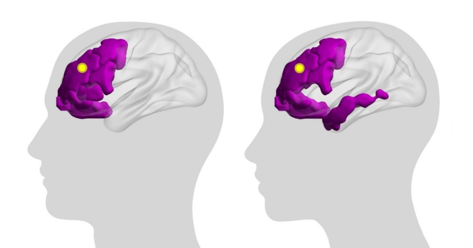 Illustration showing silhouettes of people with brains outlined, and certain brain areas highlighted in purple.