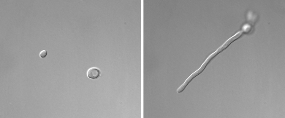 Microscope images showing single-celled yeast and elongated thread-like hyphae, both of the fungal species Candida albicans.