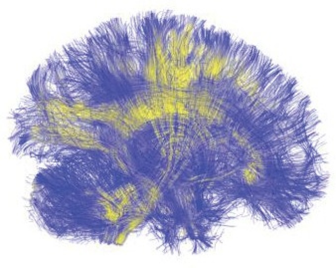 A visualization of the brain shows tracts of white matter connecting different regions of the brain to one another.