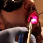 Patient undergoing oral laser light therapy.