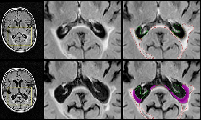 Representative images of atrophied brain lesion volume in a patient whose disease converted to secondary-progressive MS over the course of follow-up.