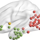 Each collection of colored dots on this University at Buffalo researcher's new brain model represent different clusters of brain regions that studies of patients with stroke or brain disease suggest might lead to impaired knowledge, such as the inability to recognize a common object. .