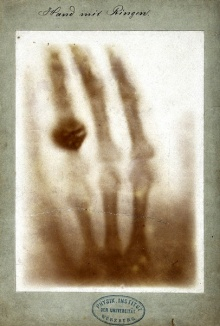 First medical X-ray by Wilhelm Röntgen of his wife Anna Bertha Ludwig's hand