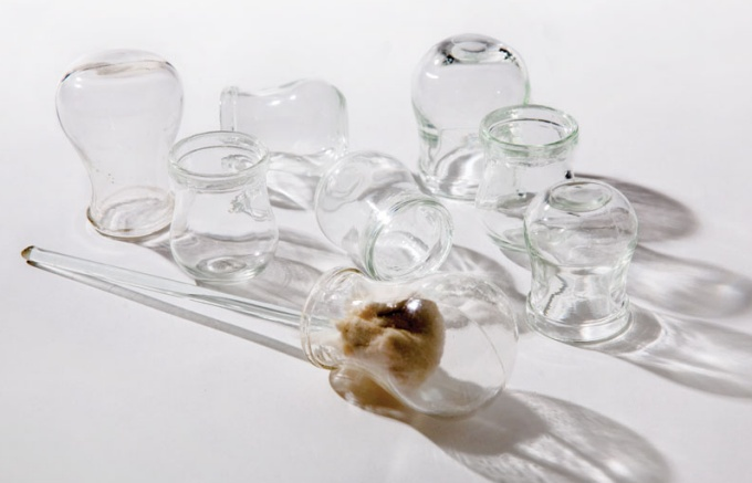 Arrangement of glass cupping jars