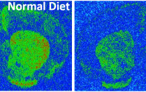 Comparison of normal and high-fat diets. More green appears in the normal diet than the high-fat diet.