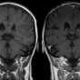 image of two brain scans.