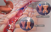 Medical illustration of cells and liver processes during type 1 diabetes.
