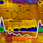 Image of dopamine release in the brain as it relates to stress.